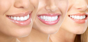 Choosing the Right Cosmetic Dentist in Los Angeles